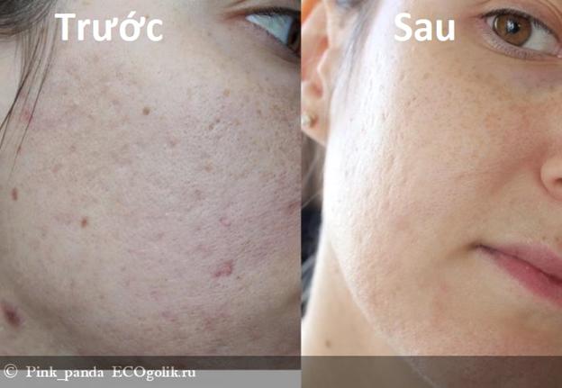 Xinh Đẹp với Serum phục hồi Lipid và chống lão hóa Sativa89